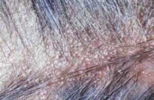 Scalp Problems (Head Skin Pictures) Causes and Treatment ...